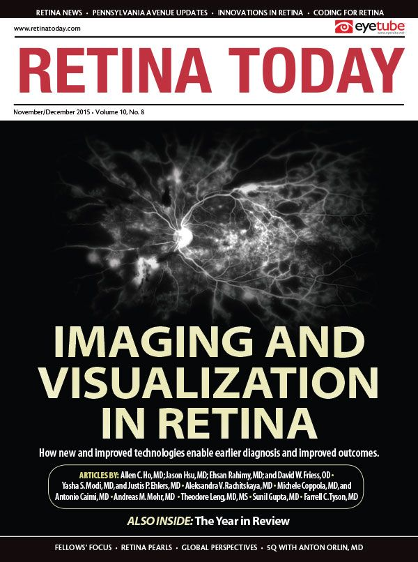 Poster Kartini Penting Retina today Pdt for Subretinal Fluid From Choroidal Nevus