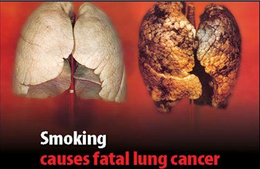 bahaya rokok dan akibat bagi perokok