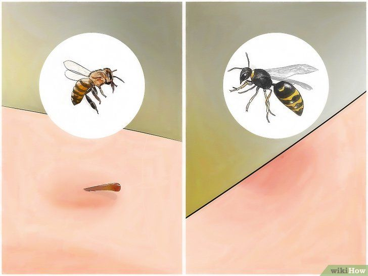 gambar berjudul identify insect bites step 4